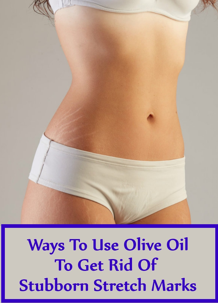 Ways To Use Olive Oil To Get Rid Of Stubborn Stretch Marks