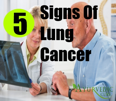5 Signs Of Lung Cancer