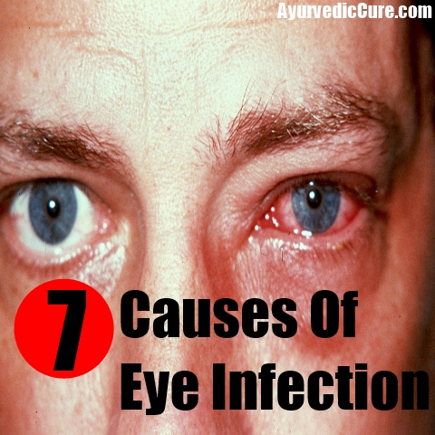 7 Causes Of Eye Infection