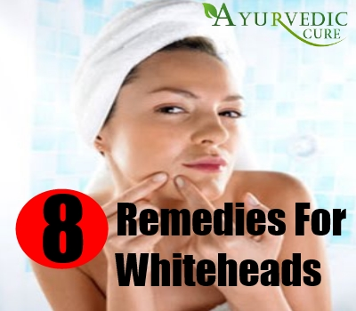 8 Remedies For Whiteheads1