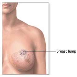 Breast Lumps