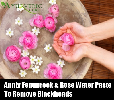 Herbal Facial For Whiteheads 91