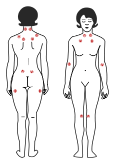one way to test if your pains are fibromyalgia is to press these common pain  points  if more than just a couple hurt, chances are you have fibro