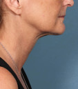 Azura Skin Care Center - Cary, NC - After Kybella