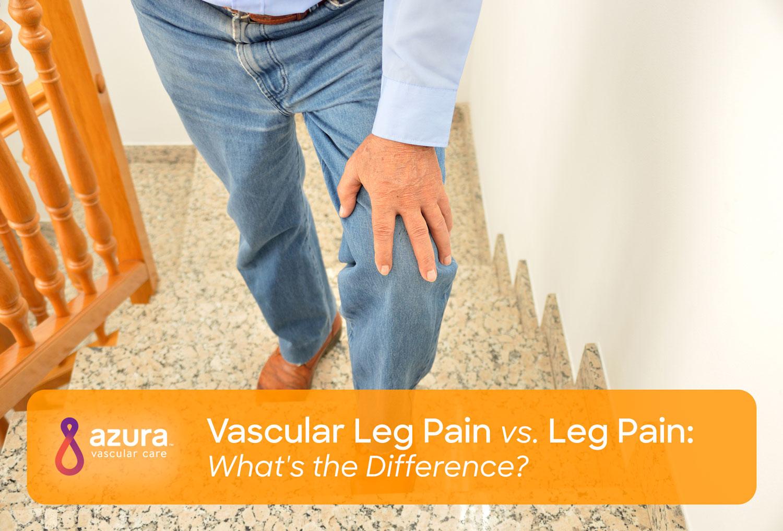 Vascular Leg Pain Vs Leg Pain What S The Difference