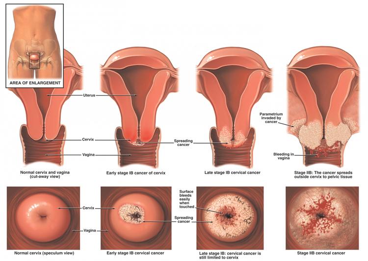 Afbeeldingsresultaat voor baarmoederhalskanker