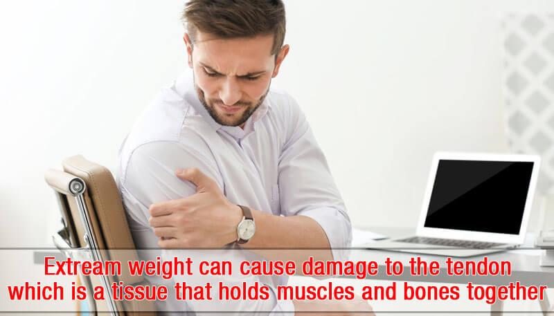 Ruptured Tendons of the Biceps