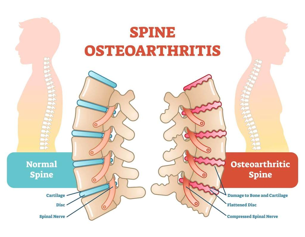 Severe Lower Back Pain Spinal Osteoarthritis