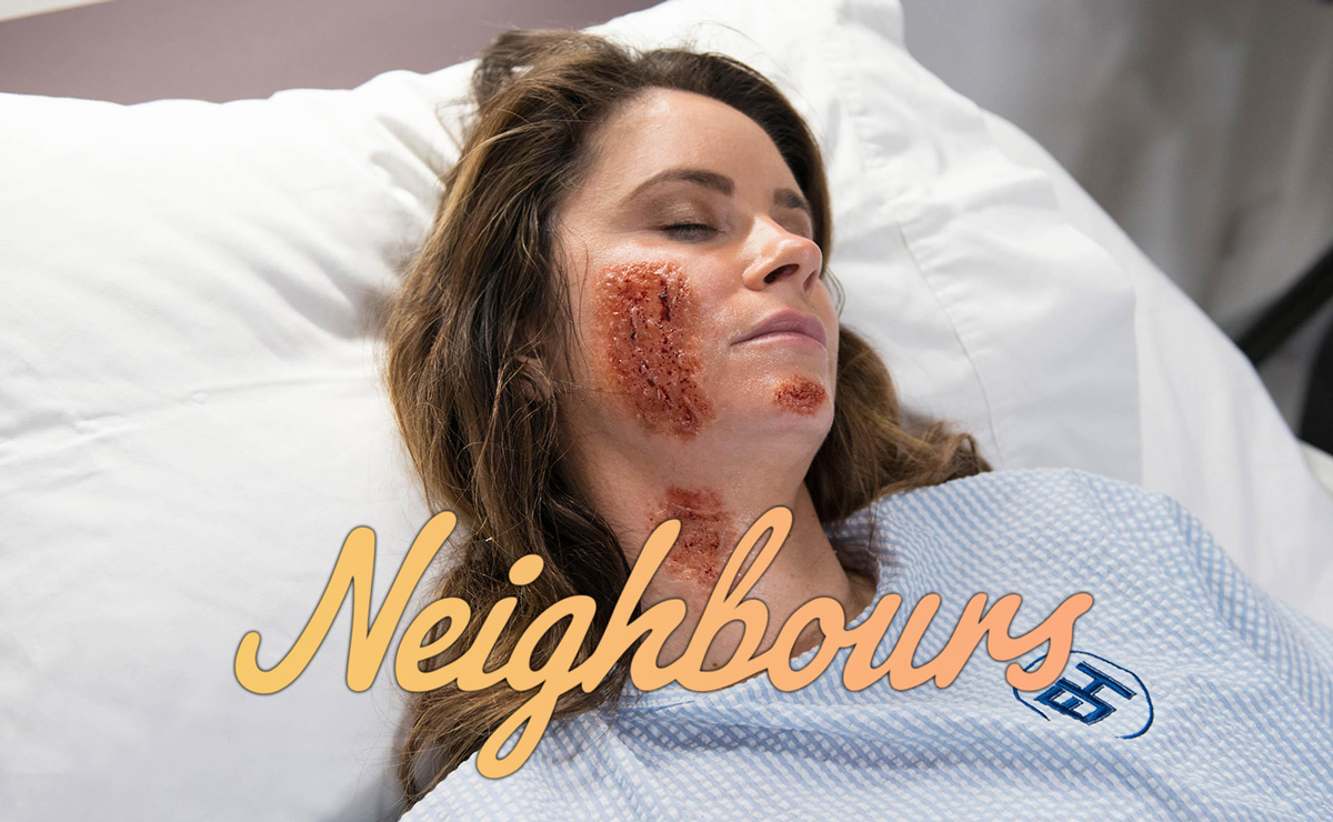 UK Neighbours Spoilers – Scarlett confesses all, as she suffers 3rd degree burns