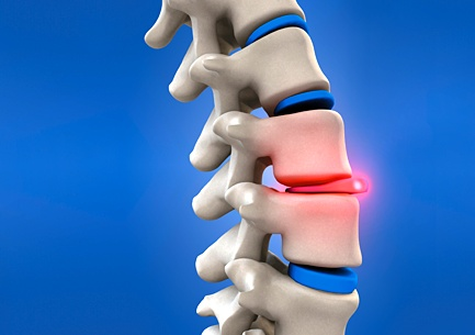 Chiropractors in Studio City Discuss Spinal Decompression