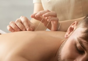 acupuncture in sherman oaks can help you heal