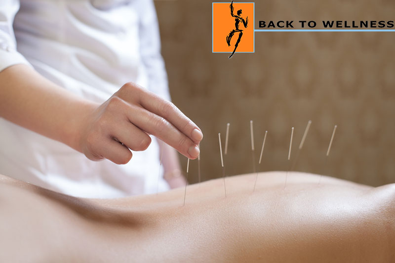 Does Acupuncture in Sherman Oaks Work