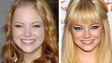 Emma Stone Before Plastic Surgery Daily Trending