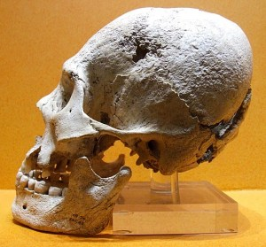 A Mexican skull exhibiting deliberate deformation