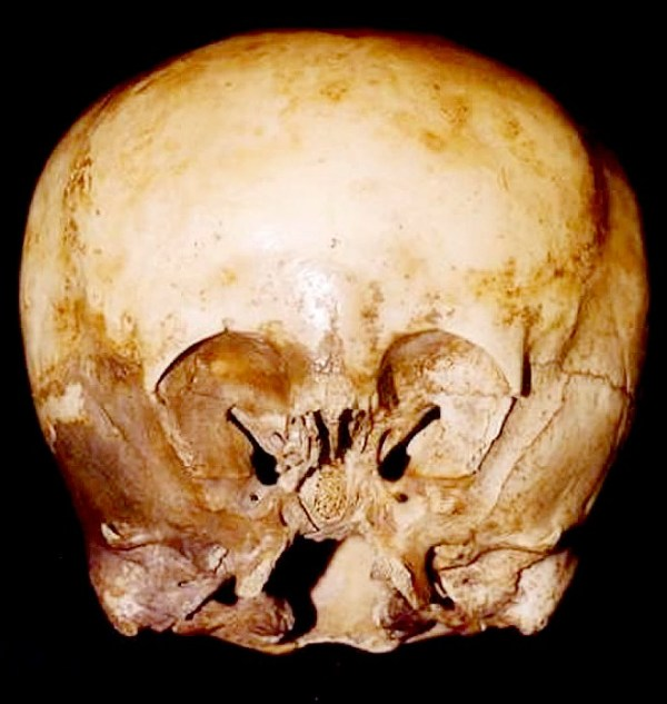 The starchild skull