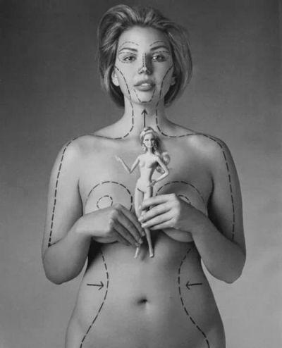 cirurgia plastica 1