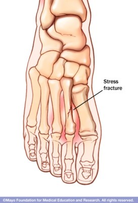 mcdc7_stress_fracture