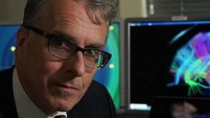 El profesor Bullmore explicó que las personas con esquizofrenia tienden a tener menos centros de operaciones en el cerebro