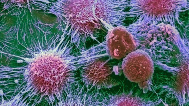 Para comprender el gran impacto del cáncer en el mundo.