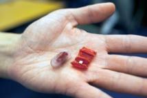 Un mini-robot de papiroflexia saca pilas de botón del sistema digestivo