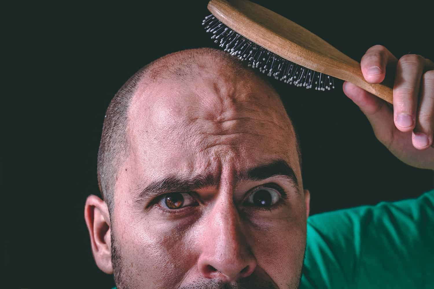 How Long Does It Take To Go Bald The Answer May Surprise You