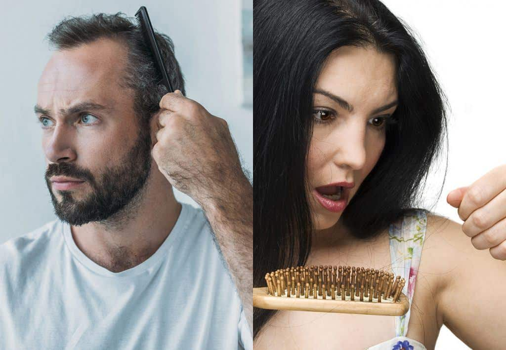 How To Stop Hair Loss In Men Women With These 15 Methods 2018