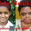 Hilfe für Monika - eine 12-Jährige mit schweren Verbrennungen! - 15 Dez 14