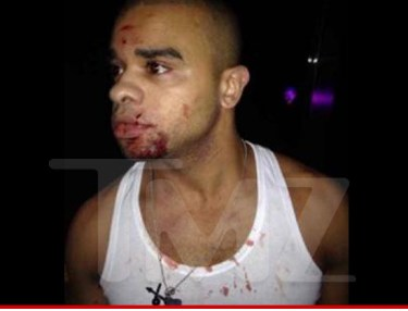 Raz B smacked in face with bottle.