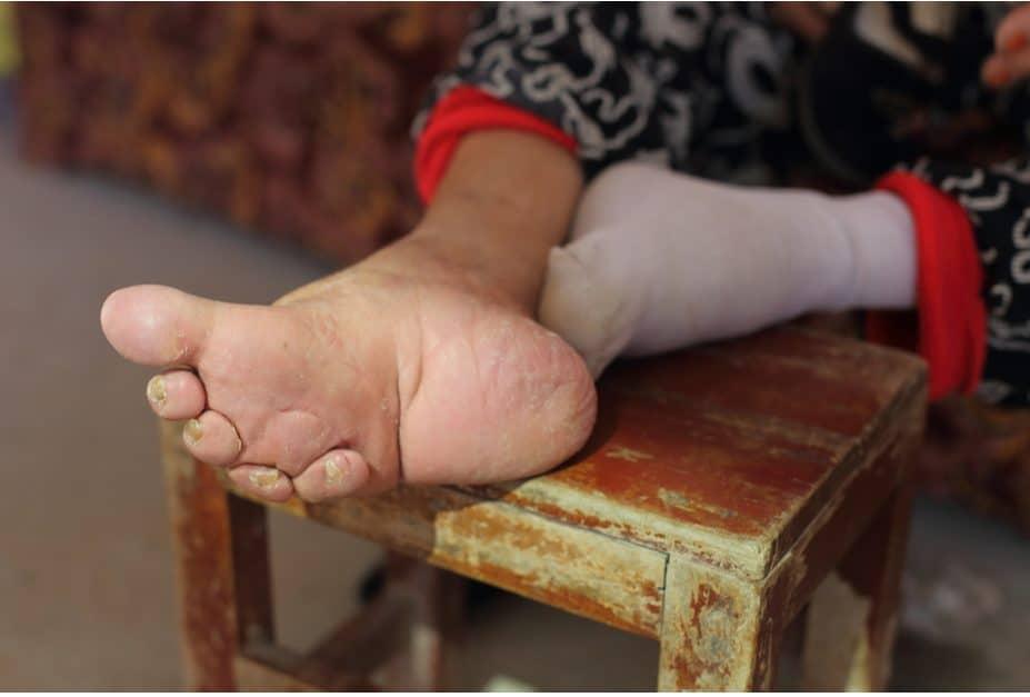Füße hat mein freund hässliche Promis, die