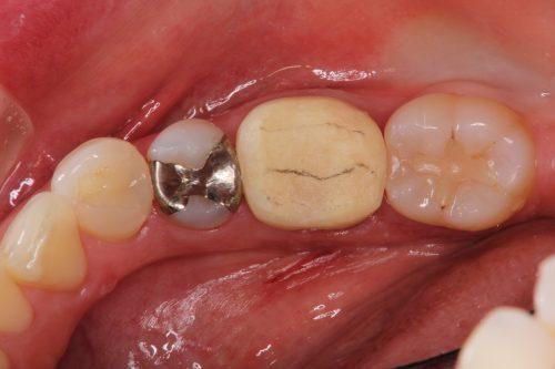 群馬 歯科