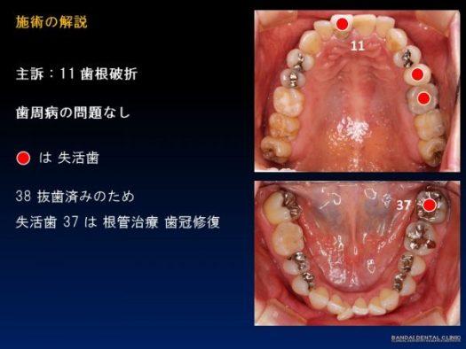 歯科 群馬 前橋 高崎 歯の移植