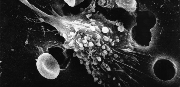 A new method of cancer treatment revealed that targets its weaknesses… In 2012 Cancer Research UK reported 161,823 deaths from cancer in the UK alone. […]