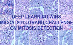 deep learning gana el reto de deteccion mitosis
