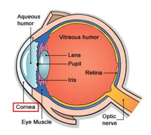 Bacterial Corneal Infections (Keratitis)
