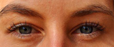 Tighten Skin Under The Eyes