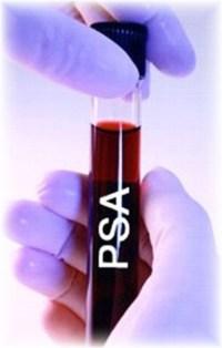 psatest-1