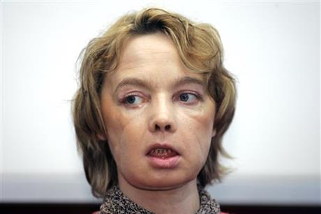 In this February 6, 2006 file photo, Isabelle Dinoire, the woman who received the world's first partial face transplant addresses reporters during her first press conference since the transplant at the Amiens hospital, northern France.