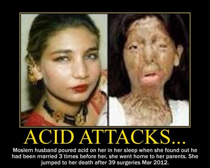 ácido-ataque-víctima-antes y después-e1359759915416