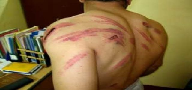 tortur Budy