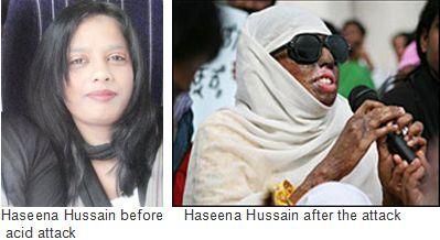 Haseena-Hussain-acid-attack