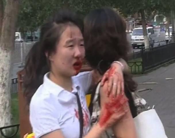 Chinese victims of Uighur Muslim needle attacks