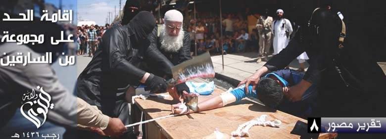 isis-islamic-state-thief-hand-amputation-sharia-law-1