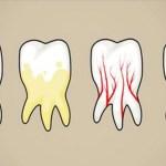 7 המזונות הגרועים ביותר לשיניים שלנו … והתחליפים הבריאים שלהם !