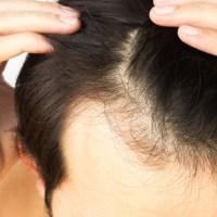 Sintomi e conseguenze dell'alopecia androgenetica: come affrontarla