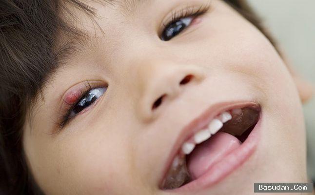 أعراض شحاذ العين عند الأطفال طرق علاج شحاذ العين في المنزل