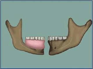 Image showing that a denture replaces more than just the teeth