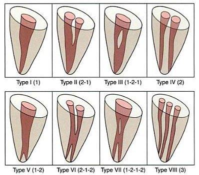 vertucci classification
