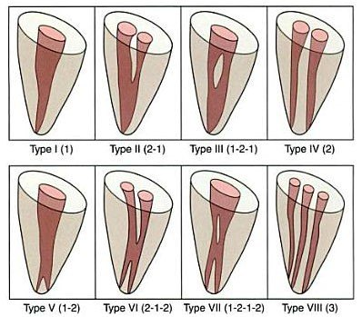 Root Canal Anatomy Vertucci Bauer Smiles