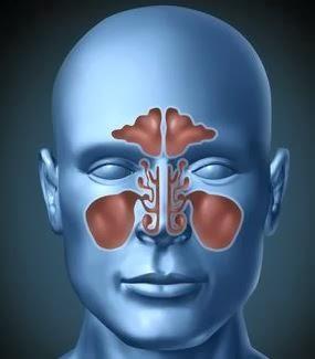 sinus-skull
