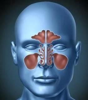 maxillary sinus infection